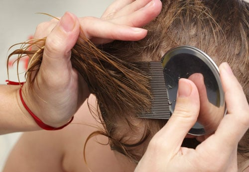 Head Lice – Facts and Fallacies