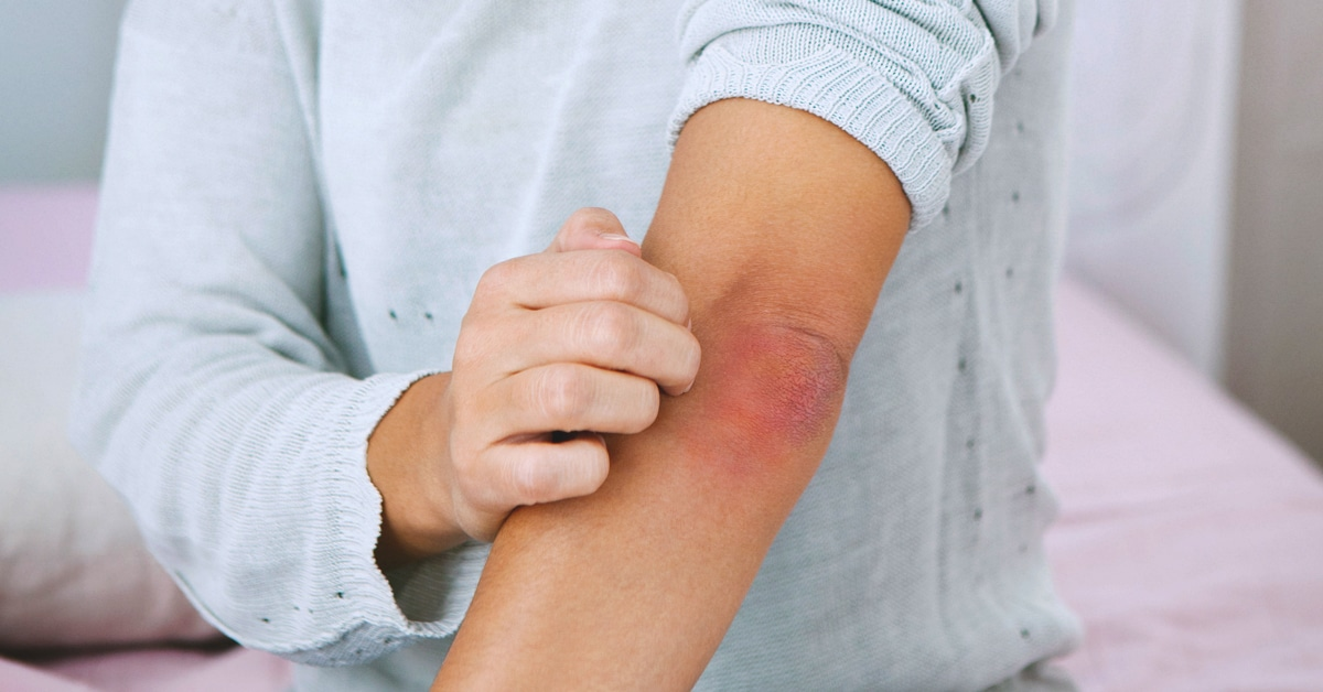About Psoriasis – Facts and Tips
