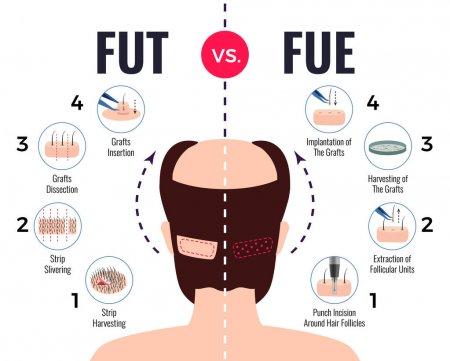 FUE vs FUT