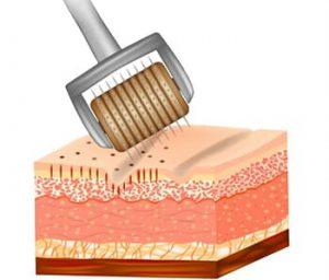 dermaroller-on-skin