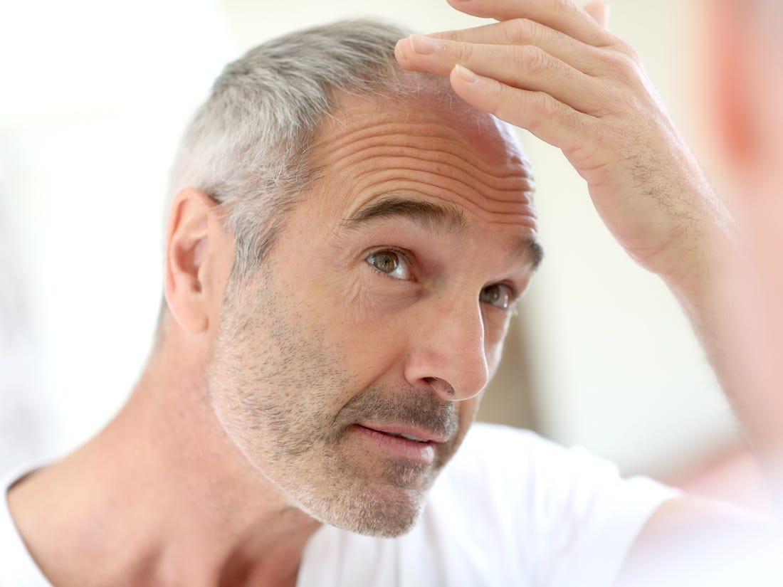 Male Hair Loss