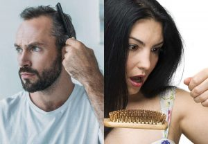 hair loss men and women 2