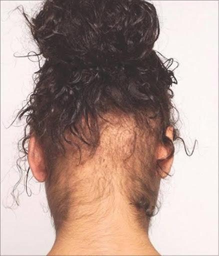 Hereditary Hair Loss not Always Genetic