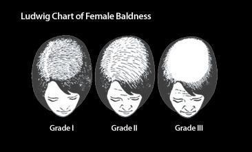 female-hair-loss-post